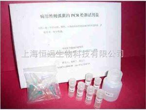 志贺氏菌属荧光定量PCR检测试剂盒