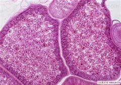 WERI-Rb-1人视网膜神经胶质瘤细胞
